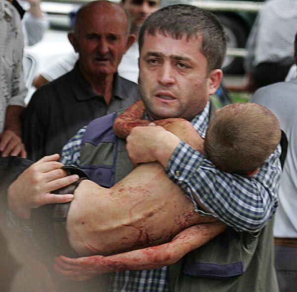 Molti bambini rimasero permanentemente disabili a seguito delle ferite subite. - Sputnik Italia