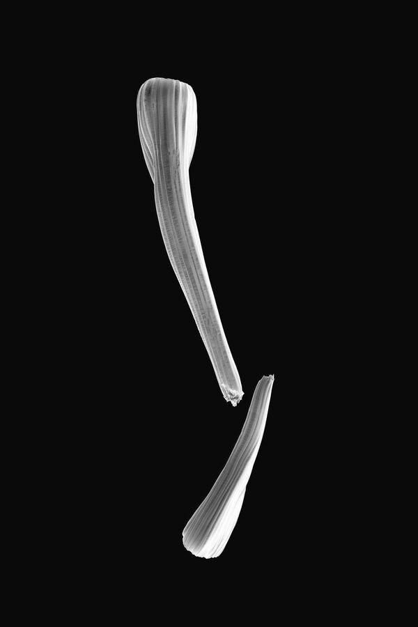 La foto Atlante di patologia del fotografo giapponese Oltea Sampetrean,  che è stata la vincitrice nella categoria Scienza tra i fotografi non professionisti del concorso fotograficoTokyo International Foto Awards 2020.  - Sputnik Italia