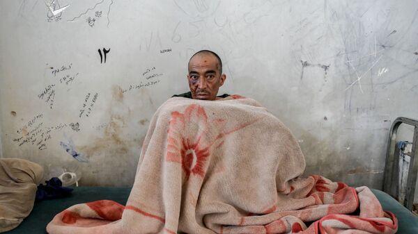 Наркоман в отделении детоксикации больницы им. Авиценны в Кабуле - Sputnik Italia