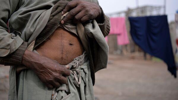 Uomo con cicatrice dovuta ad un operazione di asportazione di un rene - Sputnik Italia