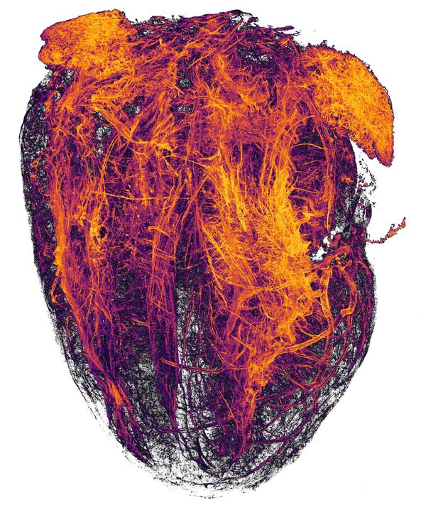 La foto 'I vasi sanguigni di un cuore murino a seguito di infarto del miocardio' dei fotografi Simon Merz, Lea Bornemann e Sebastian Korste che hanno ottenuto il 20° posto al concorso fotografico Nikon Small World-2019 - Sputnik Italia